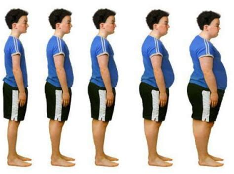 Childhood Obesity: Causes and Treatments - UK Essays